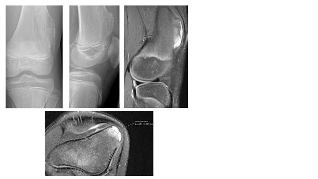 Abb. 6-9 Röntgen Kniegelenk Kind (oben li. und oben Mitte) und MRT (oben re. und unten)