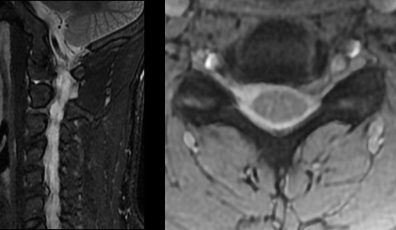 Magnetresonanztomographie (MRT) - Dein Online-Radiologe