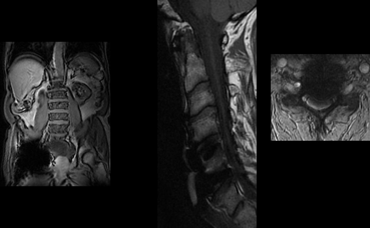 Abb. 22-24 Metallartefakte bei Hüftprothese (li.) und nach HWS-OP (Mitte und re.)