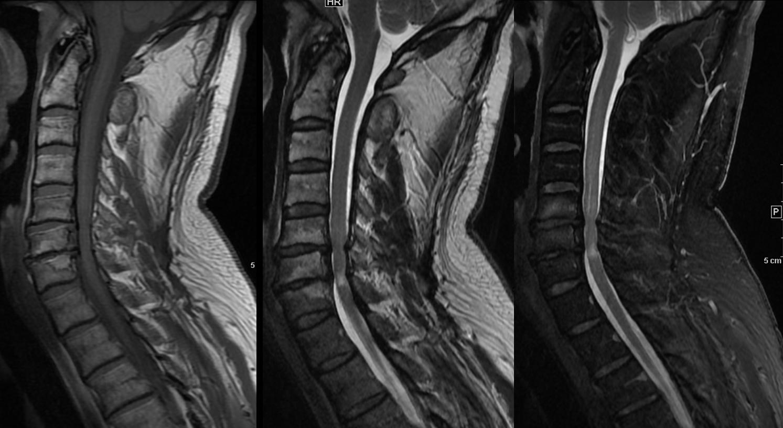 Sequenzbeispiele von links nach rechts T1-Wichtung, T2 Wichtung, STIR. Patient mit spinalen Engen und Myelopathie.
