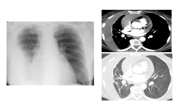 Abb. 3-5 Röntgen Thorax liegend (li.) und CT-Thorax im Weichteil- (oben re.) und Lungenfenster (unten re.)